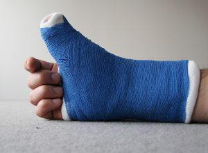 fracture-2-jpg