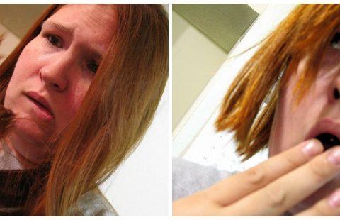 hair-loss-jpg