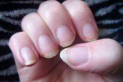 brittle-nails-174x116.jpg