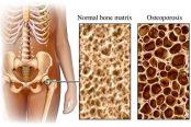 osteoporosis-174x116.jpg