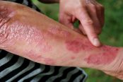 psoriasis-treatment-174x116.jpg