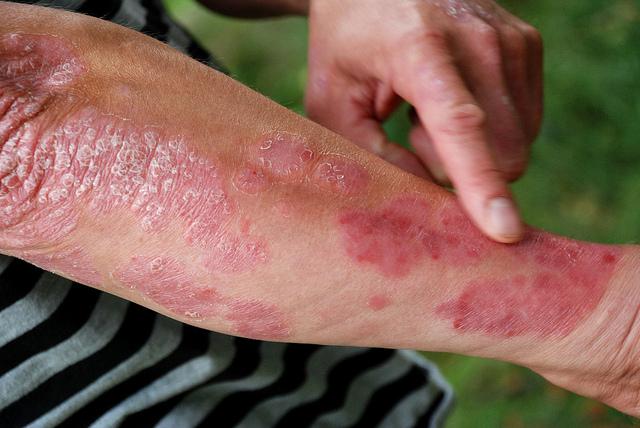 infected psoriasis a térd alatti lábakon vörös foltok fájnak