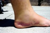 bruise-174x116.jpg