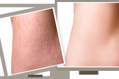 stretch-marks-174x116.png