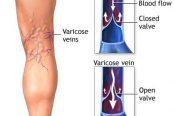 varicose-veins-174x116.jpg