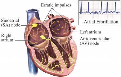 تحاول الشركات العملاقة المصنّعة لهذا الجهاز الصغير, إقناع الأطباء بضرورة  تركيبه عند كل مريض أصيب باحتشاء في القلب (جلطة القلب), ترافق مع ضعف متوسط  الشدة في ...