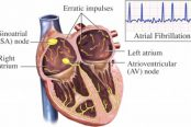 arrhythmia-treatment-174x116.jpg