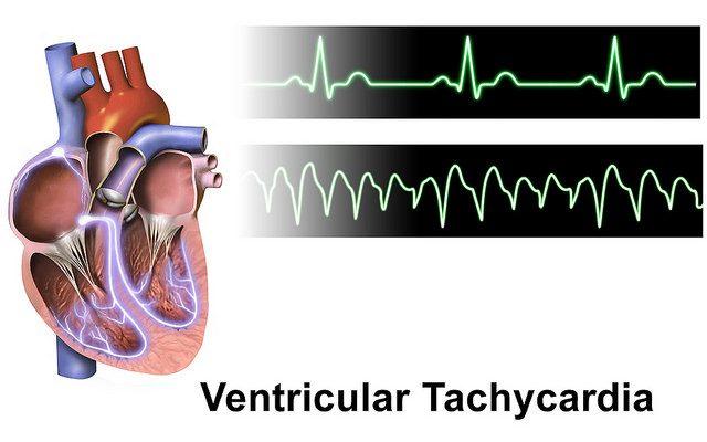 العوامل المؤدية إلى عدم انتظام نبضات القلب و المضاعفات الناتجة عنها كبسولة