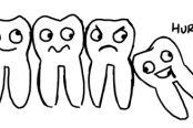 wisdom-tooth-removal-174x116.jpg