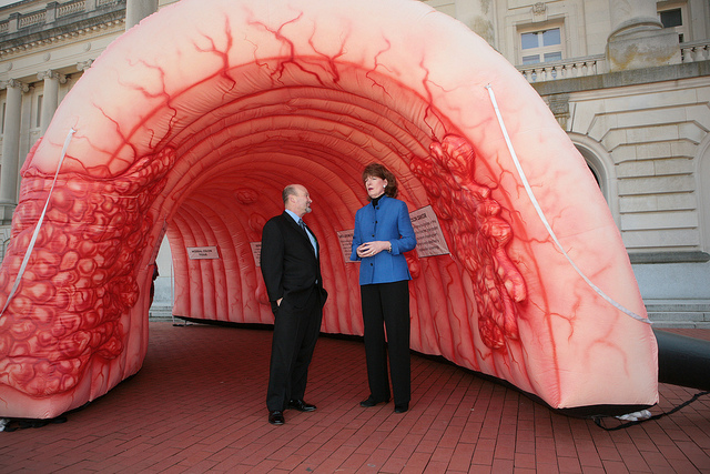 أعراض و مراحل سرطان القولون و الأسباب و العوامل الخطيرة المؤدية له كبسولة
