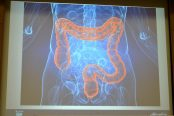 colon-cancer2-174x116.jpg