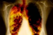 lung-cancer-treatment-174x116.jpg