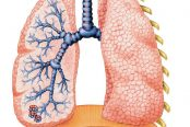 hypersensetivity-pneumonia-174x116.jpg