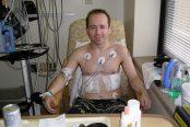 lung-transplant-174x116.jpg