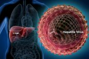 hepatitis-174x116.jpg