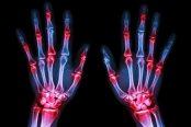 rheumatic-diseases-174x116.jpg
