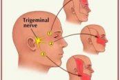 trigeminal-nerve-174x116.jpg