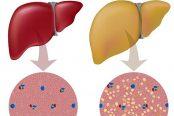 fatty-liver-174x116.jpg