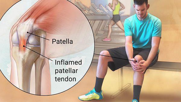 التهاب أوتار الركبة