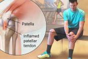 knee-tendonitis-174x116.jpg