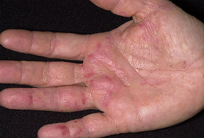 التهاب الجلد أكزيما