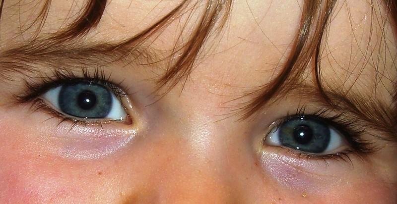 eyelid-swelling.jpg